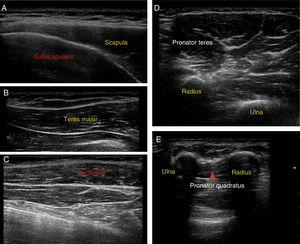 Ultrasound images of muscle localisation.