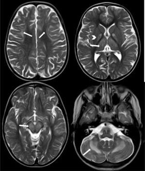 Axial T2-weighted TSE sequence showing signal hyperintensity in the subcortical white matter (U-shaped fibres), which is more pronounced in the frontal lobes (arrows in the upper left image), globi pallidi (arrowhead in the upper right image) and thalami (arrow in the upper right image), brainstem (arrow in the lower left image), and cerebellar white matter, with bilateral, symmetrical involvement.