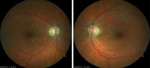 Papilloedema and haemorrhages in both eyes resolved 4 months after withdrawal of carboplatin; the patient was left with papillary pallor in the right eye and atrophy in the posterior pole of both eyes.