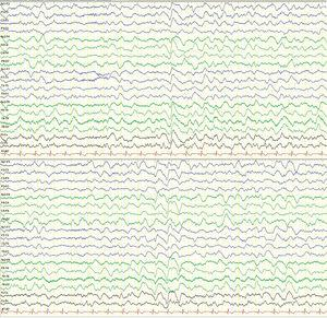 Eletroencephalography performed on day 2 (second episode): longitudinal montage (7μV/mm). Slow background activity, rhythmic delta activity with occasional biphasic and triphasic waves, suggesting diffuse encephalopathy.