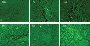 Effect of the exposure to low doses of ozone on hippocampal immunoreactivity to IL-17A. Animals were exposed for 7, 15, 30, 60, and 90 days. Images show the dentate gyrus magnified at 40×. Note that immunoreactivity to IL-17A increases considerably after 30, 60, and 90 days of exposure. Arrows indicate immunoreactivity to IL-17A.