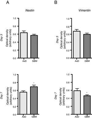 Nestin and vimentin expression in transfected and GBM cells. Both cell types showed similar levels of nestin and vimentin expression at day 3 of differentiation; differences in marker expression were observed at day 7. These findings reflect transfected cells attempting to compensate for altered differentiation, and confirm the glial nature of GBM cells. Graphs show means and standard error. *P<.05. GBM: glioblastoma multiforme.
