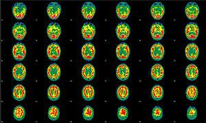 Initial brain perfusion SPECT performed after the administration of 925MBq of 99mTc-HMPAO. Representative transaxial tomographic slices are shown. Qualitative assessment detected irregular cortical function in both hemispheres, with more marked hypoactivity in the anterior and orbitofrontal regions, and in the right mesial temporal region. The left hemisphere showed defects in the orbitofrontal, temporobasilar, and mesial regions. Asymmetry is observed in the basal nuclei, with decreased activity on the right side; the cerebellum is unaffected.