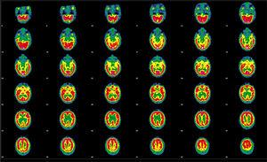 Follow-up brain perfusion SPECT performed after the administration of 925MBq of 99mTc-HMPAO, 20 months after the initial study. Representative transaxial tomographic slices are shown. Irregular cortical function is observed in both hemispheres, with defects of higher intensity in the orbitofrontal and temporal regions and small, diffusely distributed irregularities in the remaining areas of both hemispheres; no alterations are observed in the basal nuclei or cerebellum. Compared with the previous studies, an improvement is observed in the defects in the orbitofrontal and temporal regions, with normal uptake in the anterior frontal region.