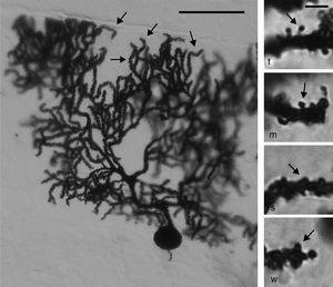 Left panel: photomicrograph of a Purkinje cell from the cortex of the cerebellar paramedian lobule. Arrows point to the distal dendritic branchlets where spines were counted. Scale bar: 100μm. Right panel: photomicrograph representing thin (t), mushroom (m), stubby (s), and wide (w) spines (arrows), similar to the ones counted in our study. Scale bar: 2μm.