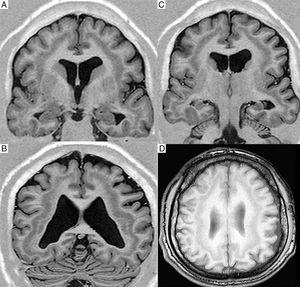 T1-weighted MR images (inversion recovery) obtained in a 1.5T scanner; coronal slices (A-C) and an axial slice (D) showing a band of grey matter within the subcortical white matter, with no lissencephaly or achygyria/pachygyria.