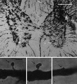 Above: panoramic microphotograph of the dorsal and ventral horns in a thoracic section from a rat spinal cord; the tissue was stained using a modified Golgi method. Arrows indicate motor neurons in the ventral horn containing the primary dendrites where dendritic spines were counted. Scale bar: 100μm. Below: representative photomicrographs showing a typical thin spine (t), mushroom spine (m), and stubby spine (s) (arrows), which were counted in our study. Scale bar: 2μm.