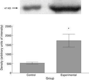 Expression of synaptophysin in spinal tissue from control and experimental animals. Statistical significance was set at P=.05 (*).