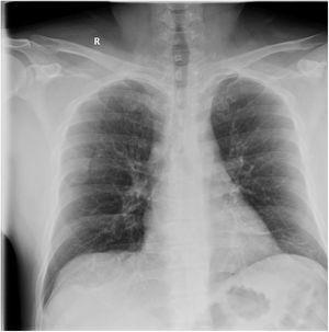 Chest radiography (posteroanterior view) revealing ground-glass opacity in the right middle lobe; in the current epidemiological situation, these findings suggest incipient pneumonia secondary to SARS-CoV-2 infection.