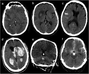 Baseline head CT scan performed within 36hours of revascularisation. (a) Haemorrhagic infarction type 1: small petechiae around the infarcted area. (b) Haemorrhagic infarction type 2: confluent petechiae in the infarcted area with no mass effect. (c) Parenchymal haematoma type 1: haematoma in ≤ 30% of the infarcted area, with no mass effect. (d) Parenchymal haematoma type 2: parenchymal haematoma open to the ventricular system, observed in > 30% of the infarcted area, with a significant mass effect. (e) Remote parenchymal haematoma type 1: small haemorrhage with no association with the infarcted area (left middle cerebral artery territory). (f) Haemorrhagic infarction type 1+subarachnoid haemorrhage+contrast uptake: small petechiae around the infarcted area, haematoma in the subarachnoid space, and contrast uptake.