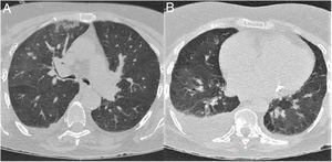 Chest CT scan at admission. (A) Axial plane at the level of the upper lobes. (B) Axial plane at the level of the lower lobes. Bilateral ground-glass opacities, predominantly on the right side, affecting the central and mainly the peripheral area. The scan also revealed consolidation in the right upper lobe and moderate right pleural effusion.