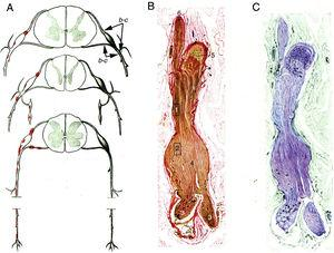 """Minimally altered reproduction of figures 65 to 67 from Krücke's12 article. A) Diagram of lesion topography in GBS (from top to bottom: cervical, thoracic, and lumbar regions). Lesions (red dots) are observed in proximal nerve trunks, including the ventral and dorsal spinal roots, spinal ganglia, sympathetic ganglia, and the ventral rami of the spinal nerves. The labels b and c used by the author to signal the localisation of figures 65, 66 (here Fig. 1B and C), and 67 (not reproduced) are maintained. B) Longitudinal section of a nerve segment between the ventral spinal root and the spinal nerve, taken from a patient with GBS who died on the 18th day of progression. The original numbering is maintained. 1 and 2: areas illustrated by Krücke in other figures, demonstrating extensive """"mucoid endoneurial oedema"""" (inflammatory); 3: spinal nerve rami (the ventral and the dorsal ramus); 4: fusiform dilation of the spinal nerve; 5: spinal ganglion; and 6: ventral spinal root. Van Gieson stain, magnification not specified. C) Another longitudinal section from the same location, showing the purple colouration of the fusiform dilation of the spinal nerve. Cresyl violet stain."""