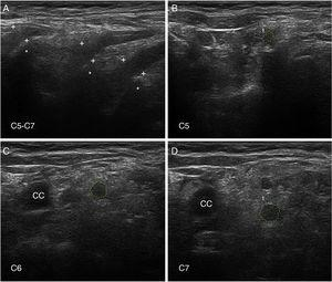 Ultrasound image of cervical nerves from a patient with AIDP (the same patient as Figs. 2 and 3); figures and S1 from Gallardo et al.15 show histology findings from the sixth cervical nerve. A) Sagittal ultrasound image showing blurring of the epineurial covering of all 3 nerves scanned (callipers). The asterisks indicate the transverse processes. B-D) Short-axis ultrasound images of the ventral rami of nerves C5-C7 (dotted green tracings). The nerves show significantly enlarged cross-sectional areas. Note the lack of a hyperechoic epineurial rim; this may be compared against the images published in the normative study by Haun et al.94 The endoneurial inflammatory oedema (see Fig. 2C-D and 3) explains the enlarged cross-sectional area, while the epi-perineurial inflammatory process (see Fig. 2E) would account for the blurring of the hyperechoic epineurial rim.