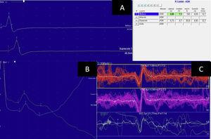Electroneuromyography study showing normal conduction velocity and amplitude in the left ulnar nerve (A). Sensory amplitude in the superficial radial nerve was normal (B). Muscle study of the right tibialis anterior revealed small motor unit potential amplitudes, without polyphasic motor unit potentials (C).