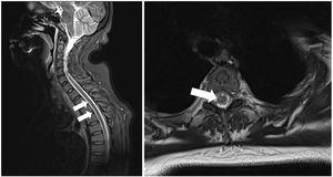 T2-weighted spinal cord MRI sequence showing hyperintensities in the anterior column extending from T2 to T7, compatible with recent ischaemic lesions.