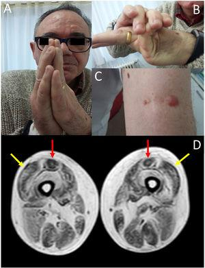 (A) Contractures affecting the metacarpophalangeal and interphalangeal joints. (B) Joint hypermobility. (C) Keloid scar in the area where a muscle biopsy specimen was taken. (D) Lower-limb MRI scan showing a pattern compatible with ColVI-related myopathy: fatty degeneration in the periphery of the vastus lateralis muscles (yellow arrows) and in the periphery and anterior-central area of the rectus femoris muscles, with a U-shaped pattern (red arrows).