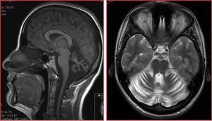 Sagittal T1-weighted and axial T2-weighted MRI sequences from patient 1, revealing diffuse atrophy of the cerebellum, normal morphology of the brainstem, and no white matter lesions.