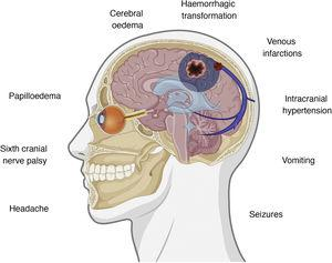 Symptoms and pathophysiological events involved in cerebral venous sinus thrombosis. Figure created with BioRender.com.