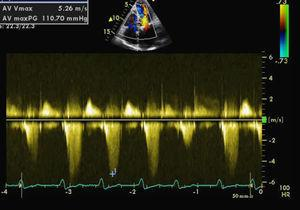 Peak gradient in the left ventricular outflow tract caused by systolic anterior motion.