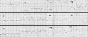 Initial electrocardiogram showing right ventricular pacing with QRS of 180ms and atrioventricular dyssynchrony.