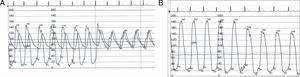 (A) Hemodynamic curves showing aortic valve gradient of 20mmHg. (B) Hemodynamic curves showing aortic valve gradient of 40mmHg between the chamber of the LV and the LV outflow tract.