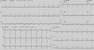 ECG showing sinus tachycardia with tall R waves in V1–V3 and T-wave inversion in V1–V2.