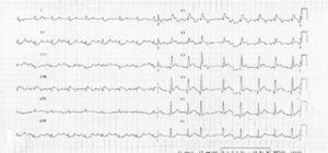 Admission electrocardiogram.