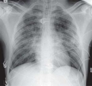 Anteroposterior chest X-ray with the patient seated after resolution of acute pulmonary edema, excluding other pleuropulmonary disease.