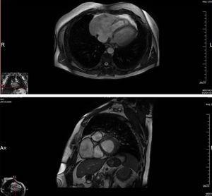 Cardiac magnetic resonance imaging (FIESTA), showing an anterior aneurysmal cavity in the right atrial free wall (11.2cm×6.6cm) in right ventricular long-axis view (top) and in transverse view (bottom).