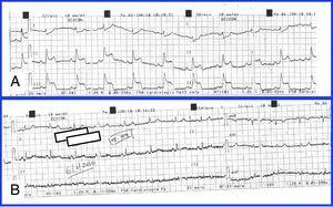 (A) ECG during an episode of chest pain. ST-segment elevation can be observed in the inferior leads. (B) ECG 6min after administration of sublingual nitroglycerine, showing normalization of electrocardiographic alterations.