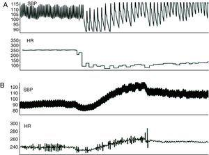 Systolic blood pressure (SBP) and heart rate (HR). (A) During vagal stimulation; (B) during sympathetic stimulation.