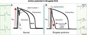 A: In healthy individuals, there is a small notch in phase 1 of the ventricular action potential mediated by the ITO current that is more evident in the epicardium and is not visible on the ECG. B: In Brugada syndrome, an ionic imbalance in phase 1 favoring repolarization in the epicardial surface generates a transmural voltage gradient, seen on the ECG as type 1 repolarization pattern.