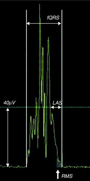 Late potentials are defined by at least two of three criteria: total filtered QRS duration (fQRS) >114ms, the duration of the terminal QRS complex that is less than 40μV (low amplitude signal [LAS]) >38ms, and the voltage in the last 40ms of the QRS (root-mean square [RMS40]) <20μV.