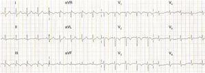 ECG showing sinus tachycardia, S1Q3T3 pattern and T-wave inversion in V1–V4, probably related to ischemia and/or overload in the right ventricle and the ventricular septal region.