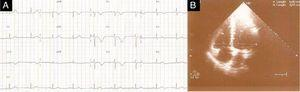 (A) ECG showing sinus bradycardia of 58bpm, absence of S wave in DI and T-wave inversion in V1–V4. (B) Transthoracic echocardiography in end-diastolic apical 4-chamber view showing right/left ventricle ratio <1 and pulmonary artery systolic pressure of 25mmHg.