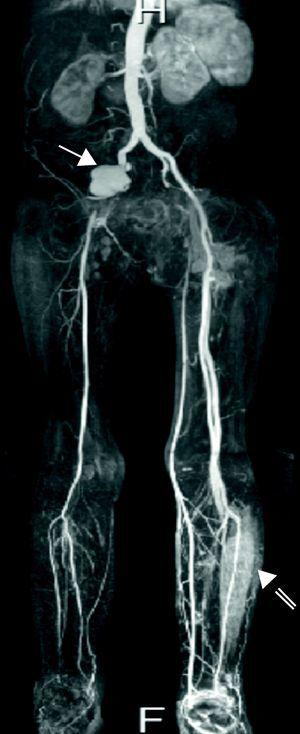 MRI angiogram showing pseudoaneurysm of the right iliac artery (solid arrow) and abscess of the left leg (open arrow).