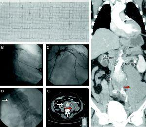 (Panel A) Electrocardiogram showing ST-segment elevation in leads V1–V4 compatible with an anterior myocardial infarction. (Panel B) Coronary angiography showing acute stent thrombosis in the proximal segment of the anterior descending coronary artery. (Panel C) Coronary angiography after thrombus aspiration showing reestablishment of TIMI 3 flow in the anterior descending coronary artery. (Panel D) Aortography revealing an abdominal aneurysm with slow flow and subtraction images suggestive of thrombus (white arrow). (Panels E and F) Computed tomography imaging showing a ruptured abdominal aneurysm (white arrow) surrounded by a large retroperitoneal hematoma (red arrow).