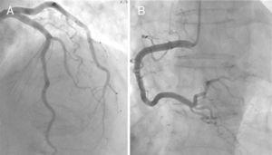 Cardiac catheterization in a patient with takotsubo cardiomyopathy showing normal coronary arteries. (A) Left coronary artery; (B) right coronary artery.