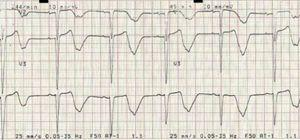 2:1 atrioventricular block (heart rate ±45 bpm) with prolonged QTc interval (±690 ms).
