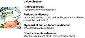 Radiotherapy-induced cardiotoxicity.