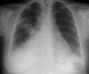 Chest X-ray at admission.