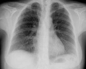 Chest X-ray at discharge.