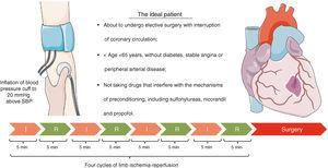 Proposed protocol for application of remote ischemic preconditioning. Figure produced using Servier Medical Art. I: ischemia; R: reperfusion; SBP: systolic blood pressure.