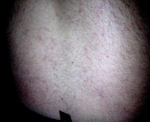 Photograph of the patient's back on May 24, 2010 showing purplish livedo reticularis.