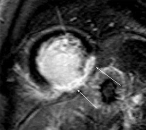 Cardiac magnetic resonance imaging on May 14, 2010: short-axis view with late gadolinium enhancement, showing transmural enhancement in the inferior and inferolateral walls of the left ventricle (arrows).