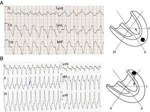 Determining the origin of ventricular tachycardia according to QRS axis. (A) In ventricular tachycardia with apical origin the axis of ventricular depolarization is directed superiorly, and so the QRS complexes are negative in DII, DIII and aVF; (B) a ventricular tachycardia with basal origin results in positive QRS complexes in DII, DIII and aVF (adapted with permission from Wellens2).