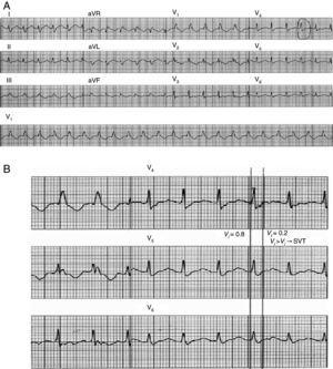 Application of the vi/vt criterion. (A) 12-lead ECG trace of wide QRS tachycardia. vi is measured in a lead showing a biphasic or multiphasic QRS with the most rapid activation velocity. A QRS complex in this lead is selected in which the beginning and end of the complex are clearly visible. (B) Vertical lines mark the beginning and end of the selected QRS complex and small red stars mark the first and last 40ms of the complex. During the first 40ms, the impulse shifts vertically by 0.8mV and thus vi=0.8; during the last 40ms it shifts vertically by 0.2mV and so vt=0.2mV. The vi/vt ratio therefore suggests a diagnosis of supraventricular tachycardia (adapted with permission from Vereckei et al.18).