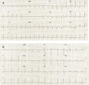 (A) ECG on admission showing ST-segment elevation in precordial leads; (B) ECG on the third day of hospitalization demonstrating T-wave inversion in precordial leads.