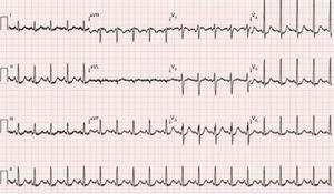 Electrocardiogram on admission to the emergency room.