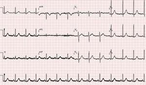 Electrocardiogram 15 h after admission to the emergency room.